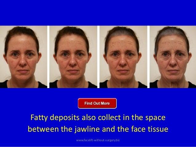 jawline workout | Workout Everydayentropy.Com