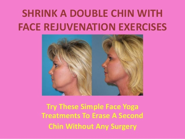 Remove Slack Second Chin Using Double Chin Exercises And Facial Yoga