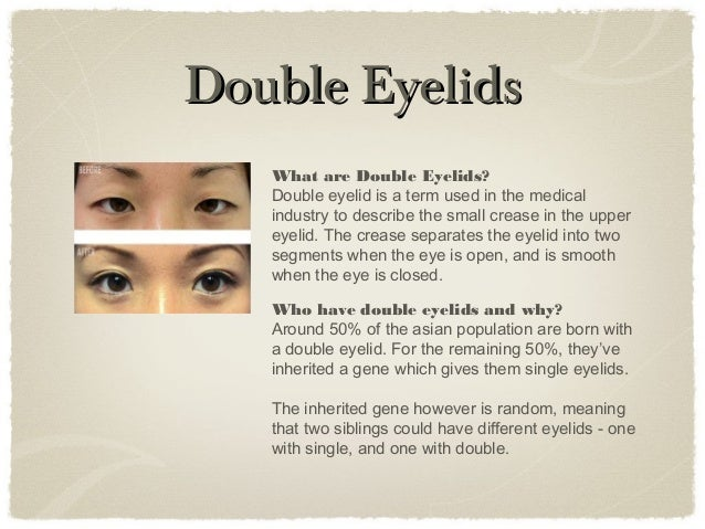 Double Eyelid Surgery Faq Asian Cosmetic