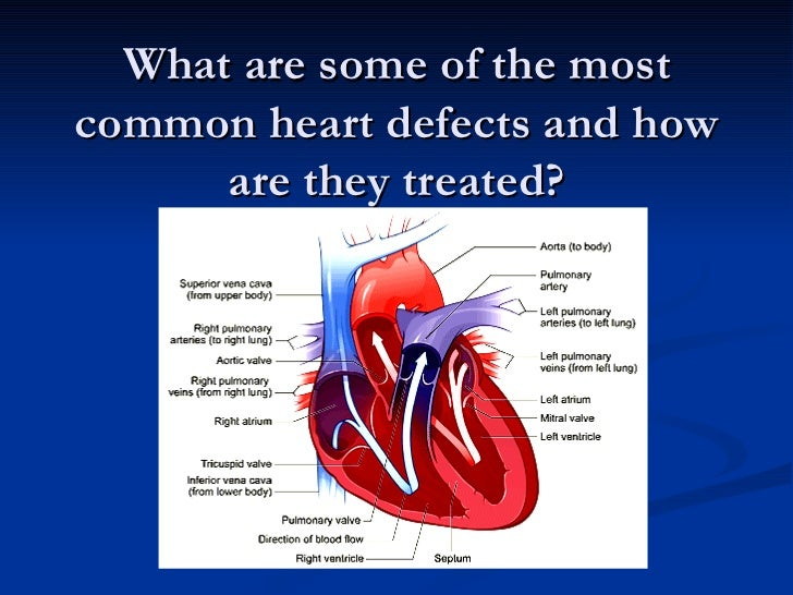 What are some of the most common heart defects and how are they treated?