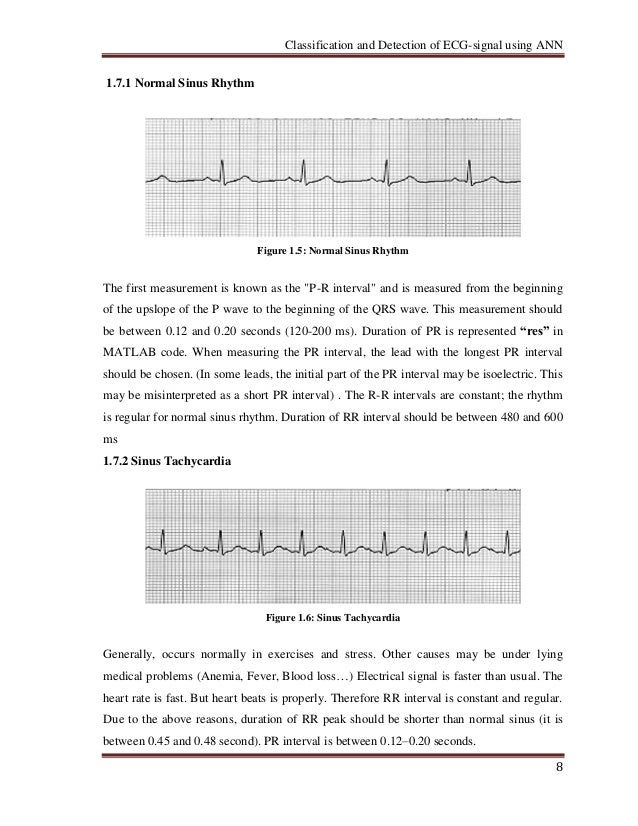 Classification and Detection of ECG-signals using Artificial
