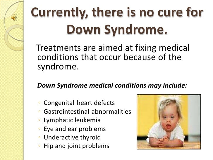 an introduction to down syndrome An introduction to topics in down syndrome cognition research, including current initiatives dsrtf supports and clinical trials now underway presenters: dsrtf.