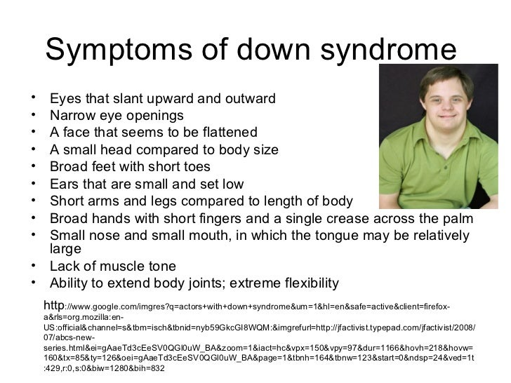 Effects, Signs & Symptoms of Down Syndrome