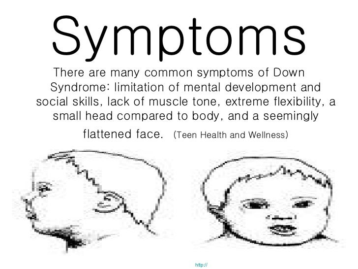 the effects of down syndrome on Down syndrome aka trisomy 21 is the most common birth defect in the united states learn more about the causes, symptoms and risks of down syndrome.