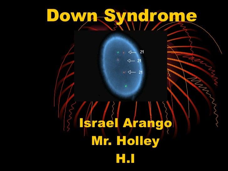 Down Syndrome Israel Arango Mr. Holley H.I 4/7/2011