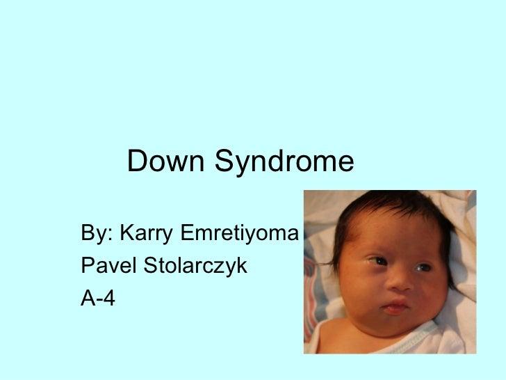 Down Syndrome By: Karry Emretiyoma Pavel Stolarczyk A-4