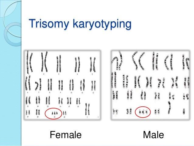 T4 thyroxine fat loss