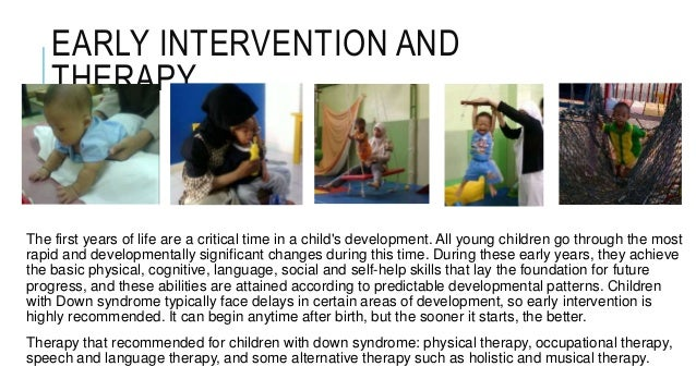 early intervention down syndrome This article reviews studies evaluating the effectiveness of two types of early intervention programmes for babies with down's syndrome (ds) evaluation of self‐help early intervention programmes was done with two types of training with the parents: in the first the parents learned the training programme from observing the.