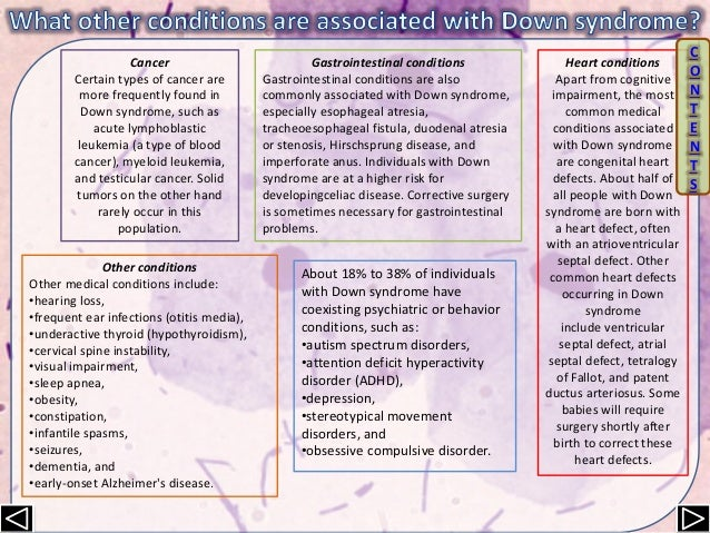 the clinical description of the medical condition down syndrome In most cases, down syndrome occurs when there is an extra copy of chromosome 21 this form of down syndrome is called trisomy 21 the extra chromosome causes problems with the way the body and brain develop down syndrome is one of the most common causes of birth defects click to keep.