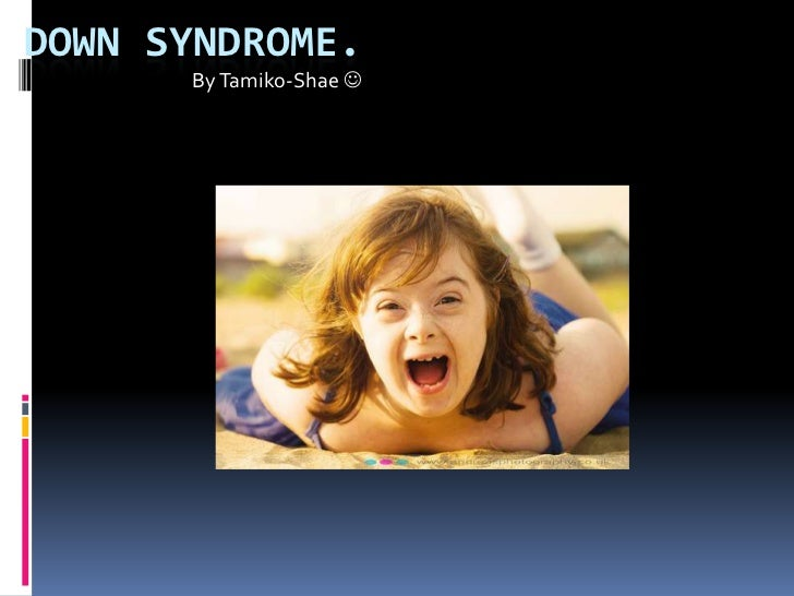 DOWN SYNDROME.      By Tamiko-Shae 