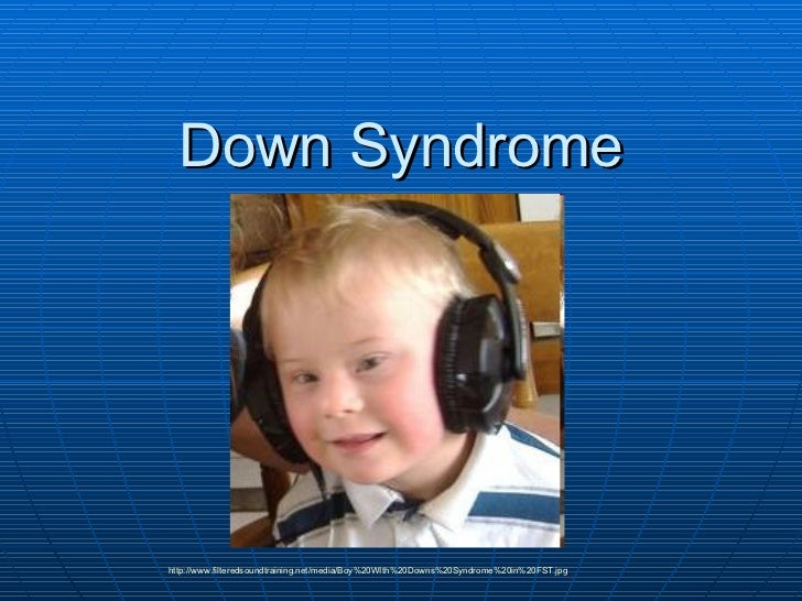 Down Syndrome http://www.filteredsoundtraining.net/media/Boy%20WIth%20Downs%20Syndrome%20in%20FST.jpg