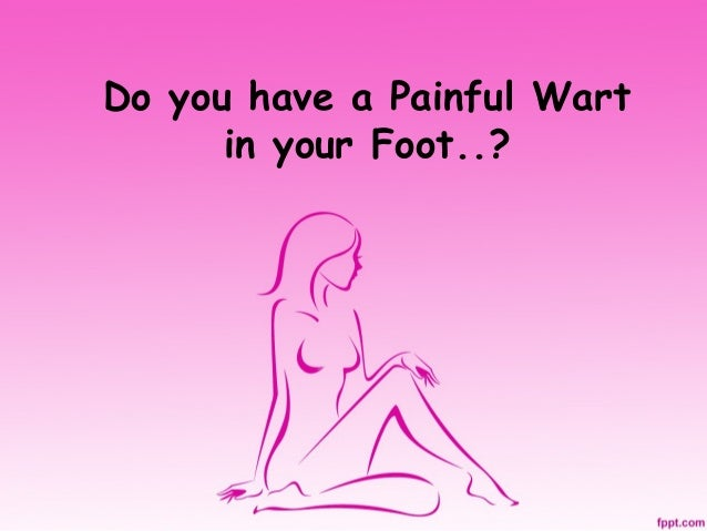 Do you have a Painful Wart in your Foot..?
