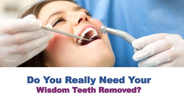 Do You Really Need Your Wisdom Teeth Removed?