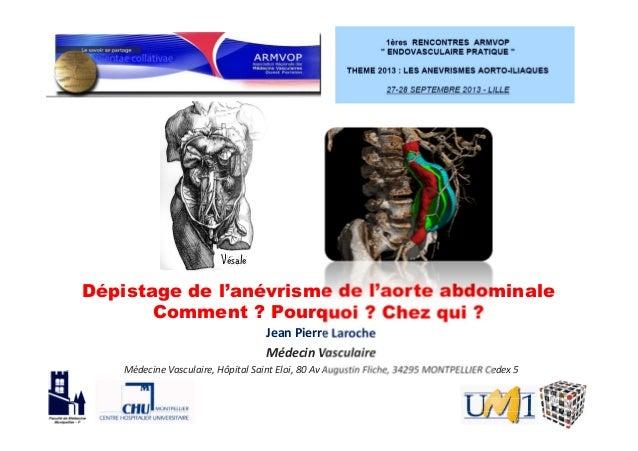 Dépistage de l'anévrisme de l'aorte abdominale Comment ? Pourquoi ? Chez qui ? Jean Pierre Laroche Médecin Vasculaire Méde...