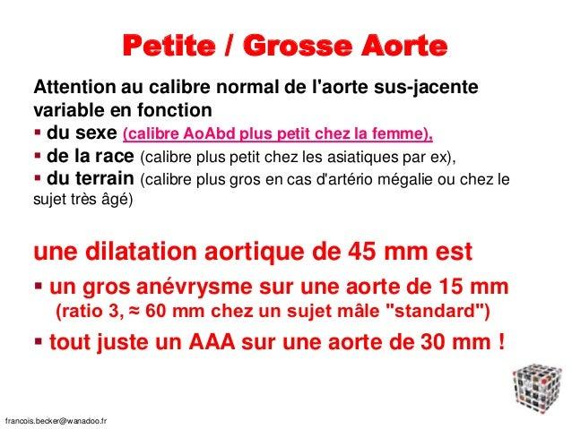 De quoi meurent les patients porteurs d'AAA ? francois.becker@wanadoo.fr J Mal Vasc dec.2006