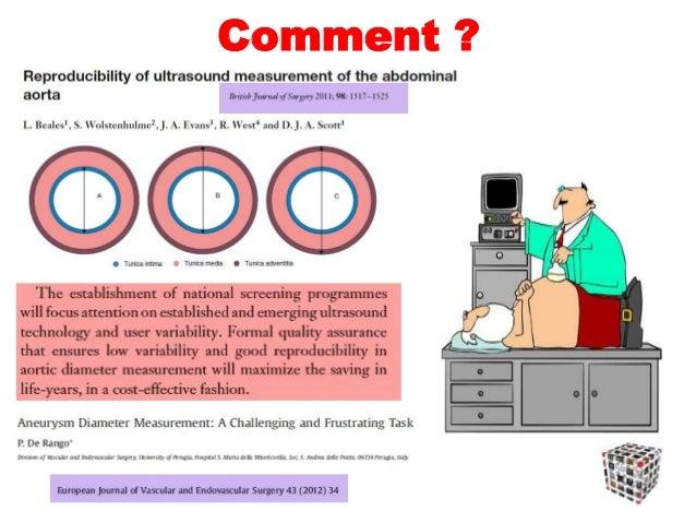 AAA, mesure du calibre Diamètre antéro-postérieur externe (adventice-adventice) maxima UK Small Aneurysm Trial: design, me...