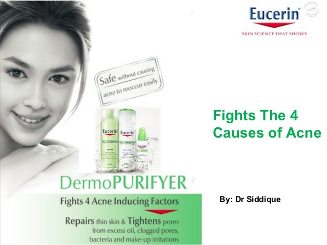 By: Dr Siddique Fights The 4 Causes of Acne