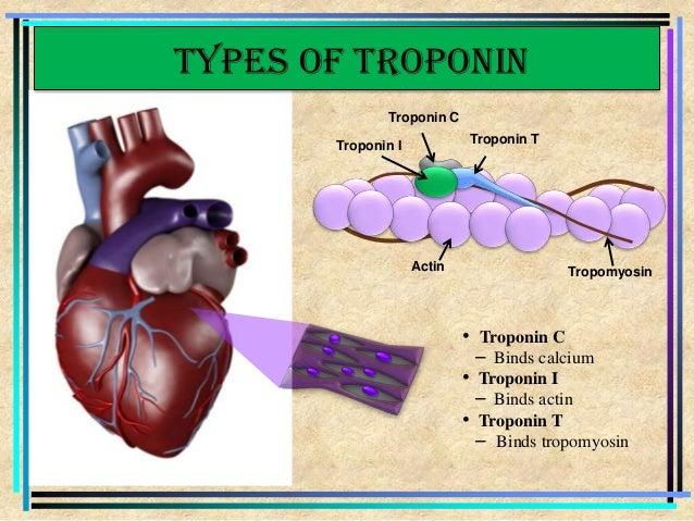 N Molecular Mass Cardiac troponin (Dr.V...