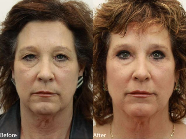 Eyelids (Blepharoplasty) Before and After Dr. Jerry Darm AESTHETIC MEDICINE 4800 Meadows Road, Suite 100 Lake Oswego, OR 9...