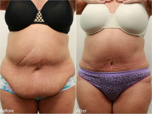 Tummy Tuck (Abdominoplasty) Before and After Dr. Jerry Darm AESTHETIC MEDICINE 4800 Meadows Road, Suite 100 Lake Oswego, O...