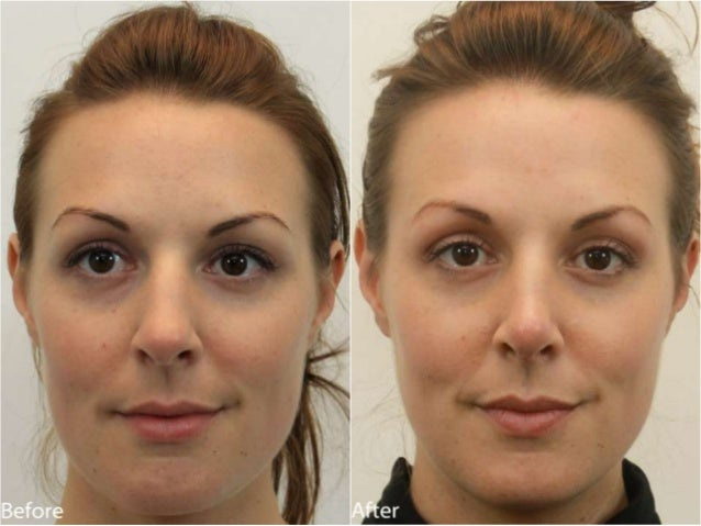 Nose (Rhinoplasty) Before and After Dr. Jerry Darm AESTHETIC MEDICINE 4800 Meadows Road, Suite 100 Lake Oswego, OR 97035 w...
