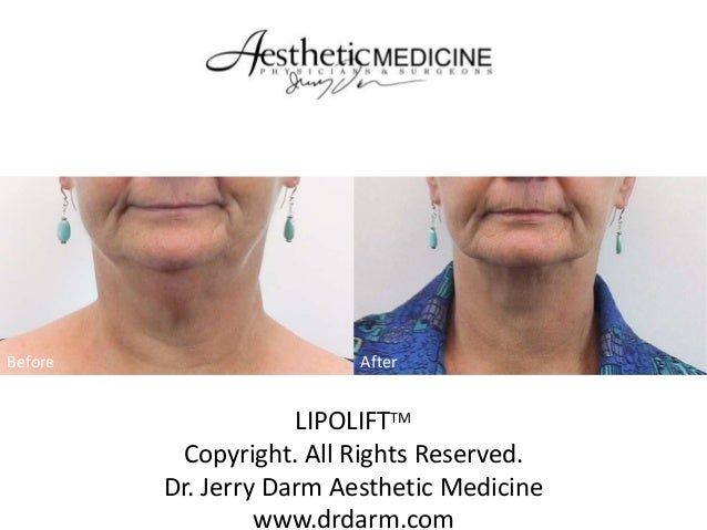 Before  After  LIPOLIFTTM Copyright. All Rights Reserved. Dr. Jerry Darm Aesthetic Medicine www.drdarm.com