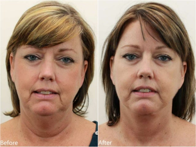 Neck Lift Before and After Dr. Jerry Darm AESTHETIC MEDICINE 4800 Meadows Road, Suite 100 Lake Oswego, OR 97035 www.drdarm...