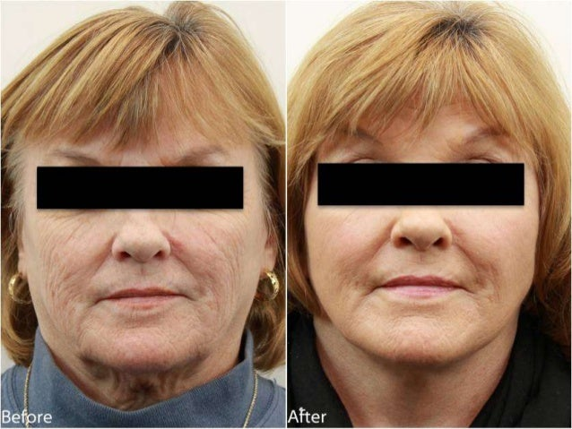 MiniLiftTM Before and After Dr. Jerry Darm AESTHETIC MEDICINE 4800 Meadows Road, Suite 100 Lake Oswego, OR 97035 www.drdar...