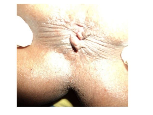 Picture of acute anal fissure ulcer