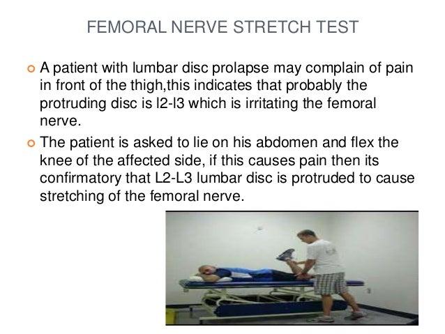Femoral Nerve Stretch Test ndash defenderauto info
