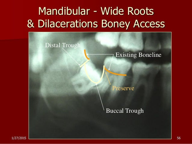 design of flap for extraction mesial root of 47 pdf