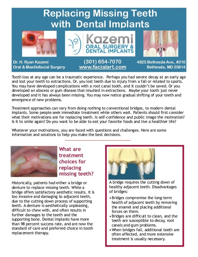 Dr. H. Ryan Kazemi Oral & Maxillofacial Surgery Tooth loss at any age can be a traumatic experience. Perhaps you had sever...