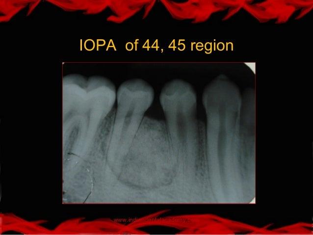 osteoid osteoma of mandible pdf