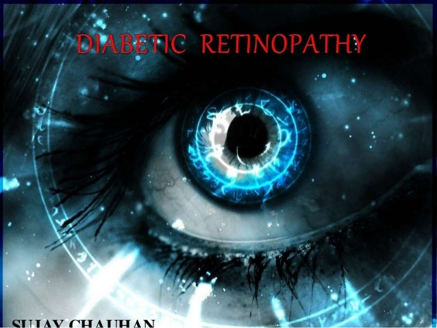 INTRODUCTION Diabetic retinopathy is a chronic progressive sight-threatening disease of retinal microvasculature associate...