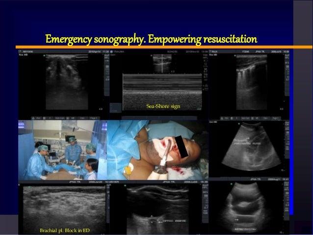 Emergency sonography. Empowering resuscitation Brachial pl. Block in ED Sea-Shore sign
