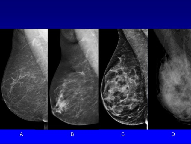 oslo study tomosynthesis Acquiring a tomosynthesis study of approximately 10-20 low-dose images in   conducted in oslo, norway, the study looked at the single screening session of.