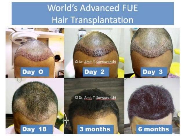 Happy Patients Worldwide Formula