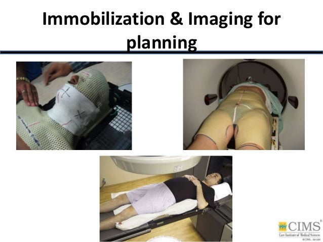 Immobilization & Imaging for planning