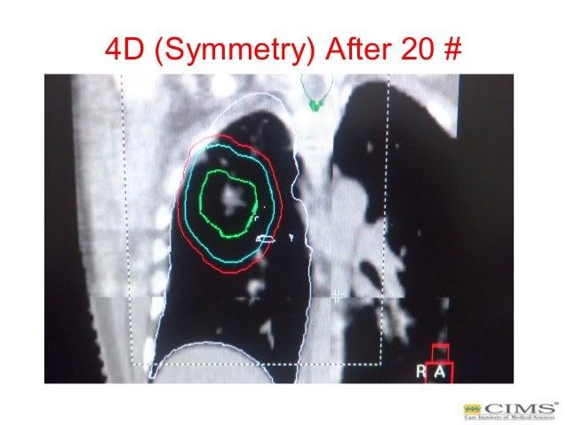 4D (Symmetry) After 20 #