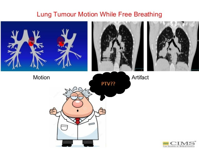 Lung Tumour Motion While Free Breathing Motion Artifact