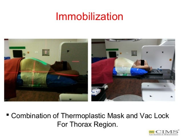 Immobilization  Combination of Thermoplastic Mask and Vac Lock For Thorax Region.