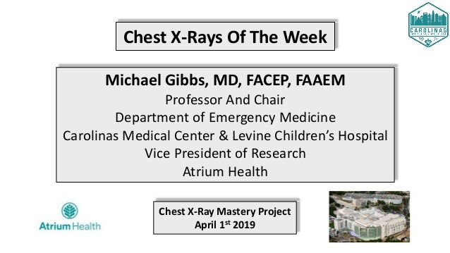Chest X-Rays Of The Week Michael Gibbs, MD, FACEP, FAAEM Professor And Chair Department of Emergency Medicine Carolinas Me...