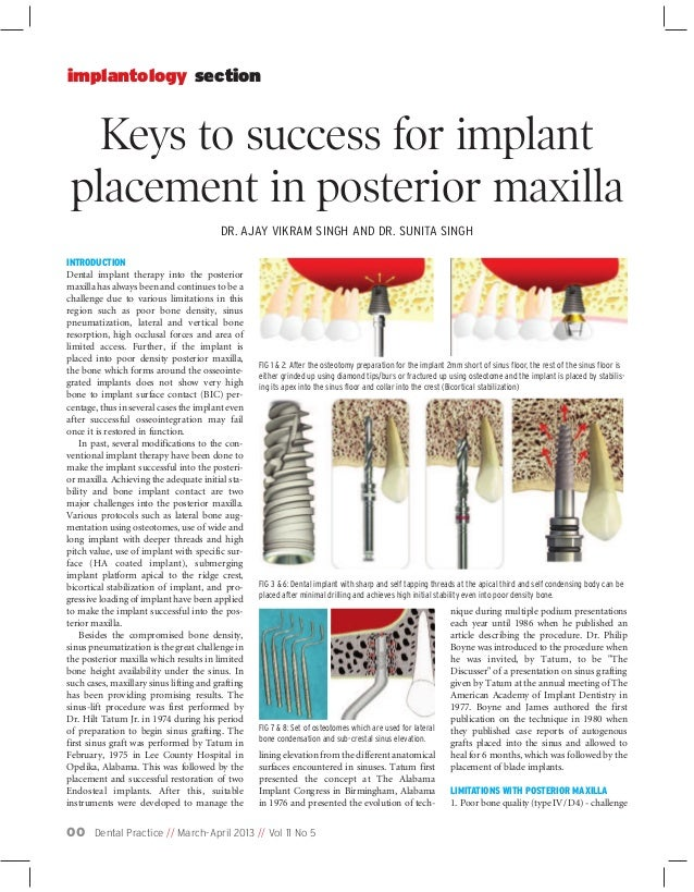 Dental Practice // March-April 2013 // Vol 11 No 500Keys to success for implantplacement in posterior maxillaimplantology ...