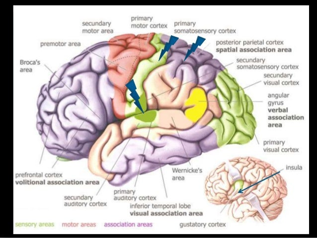 Medicine after brain stroke image 4