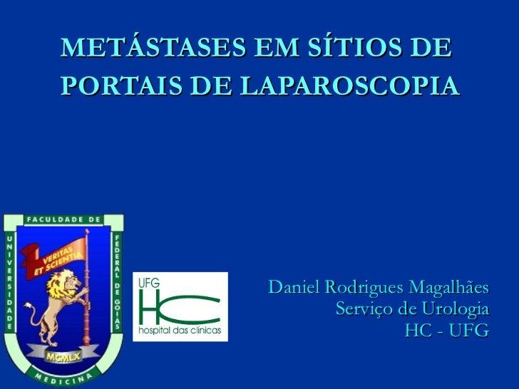 METÁSTASES EM SÍTIOS DE  PORTAIS DE LAPAROSCOPIA Daniel Rodrigues Magalhães Serviço de Urologia HC - UFG