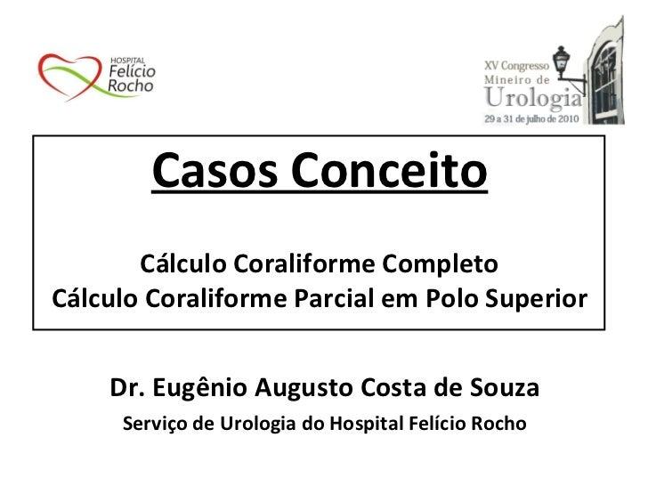 Casos Conceito Cálculo Coraliforme Completo Cálculo Coraliforme Parcial em Polo Superior <ul><li>Dr. Eugênio Augusto Costa...