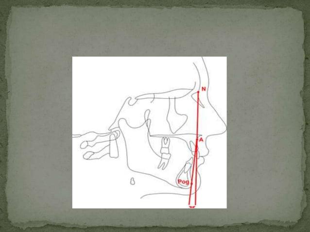  Intersection of mandibular plane with F.H Plane. Average value; 21.9' ( 17 to 28') Mandibular plane according to DOWNS...