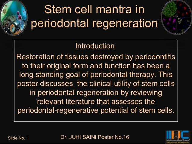 Stem cell mantra in              periodontal regeneration                         Introduction    Restoration of tissues d...