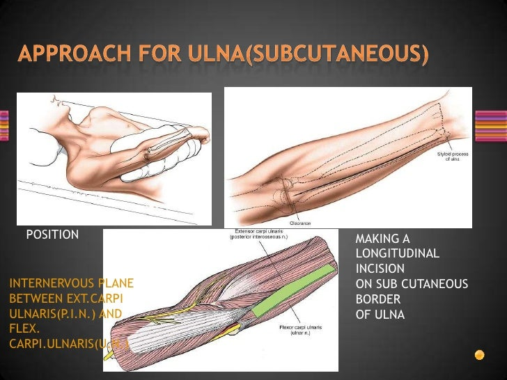eniscal injuries management and surgical techniques pdf