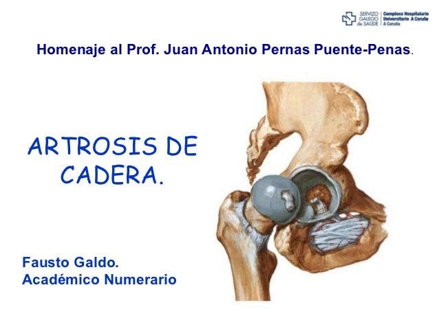 Homenaje al Prof. Juan Antonio Pernas Puente-Penas.ARTROSIS DE  CADERA.Fausto Galdo.Académico Numerario